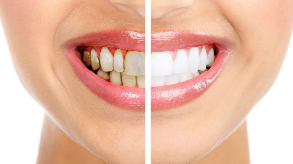 Отбеливание зубов по системе ZOOM в Черкесске